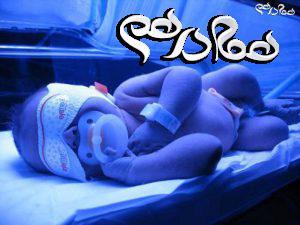زردی نوزادان و درمان آن